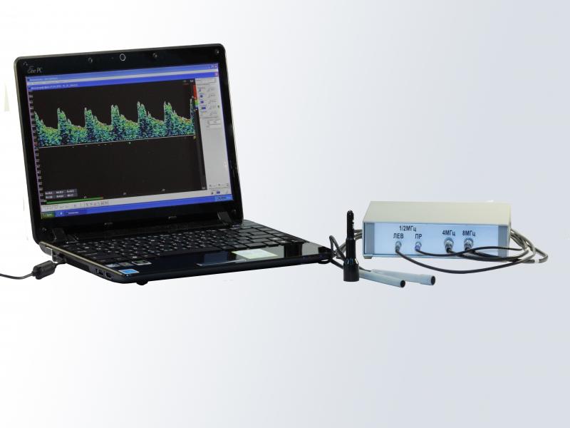 Допплеровский анализатор Комплексмед исполнение 2.3 со смартбуком - Временно не производится. Медицинский прибор для допплеровского обследования сосудов во внешнем корпусе со смартбуком.