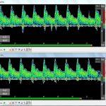 Комплексмед. Доплерограф. Режим 2 МГц ИД(ЛЕВ). Временной масштаб: 8 с. Усиление 36%