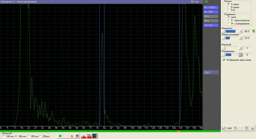 Эхосинускоп «Комплексмед». Эхограмма. S - канал. Режим: S - канал. Масштаб: 140 мм