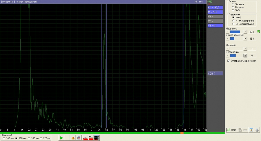 Комплексмед. Эхограмма. S - канал. Режим: S - канал. Масштаб: 140 мм