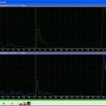 Комплексмед. Эхограмма - режим определения трансмиссии (Tr=75,75мм). D - канал. Режим: S+D. Масштаб 160 мм